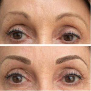 تغییرات بعد از آرایش دائم