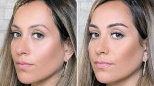 قبل و بعد از میکروشیدینگ