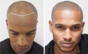 اسکالپ پوست سر چیست؟